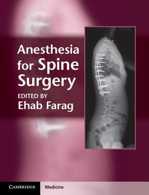 Anesthesia for Spine Surgery - Farag, Ehab (Editor)