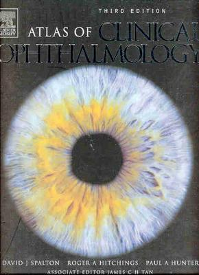 Atlas of Clinical Ophthalmology - Spalton, David J, and Hitchings, Roger A, and Hunter, Paul
