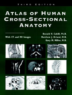 Atlas Of Human Cross Sectional Anatomy With Ct And Mr Images Book