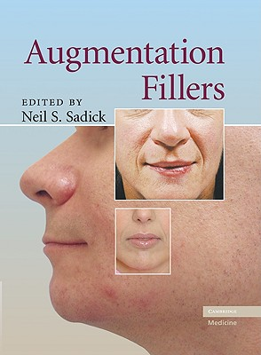 Augmentation Fillers - Sadick, Neil S, MD (Editor)