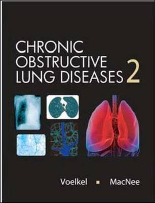 Chronic Obstructive Lung Disease - Voekel, Macnee, and Voelkel, Norbert F