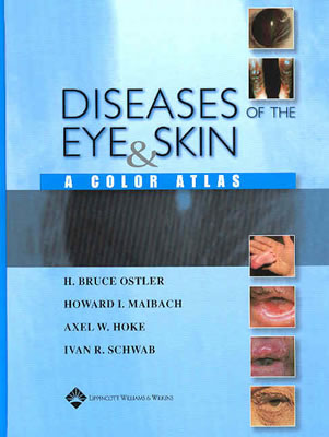 Diseases of the Eye & Skin: A Color Atlas - Ostler, H Bruce, and Maibach, Howard I, and Hoke, Axel W