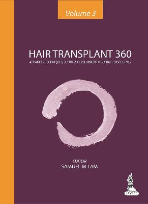 Hair Transplant 360: Volume 3: Advances, Techniques, Business Development & Global Perspectives - Lam, Samuel M.