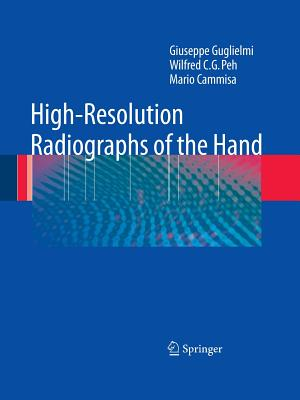 High-Resolution Radiographs of the Hand - Guglielmi, Giuseppe, and Peh, Wilfred C. G., and Cammisa, Mario