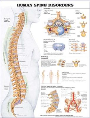 Human Spine Disorders Anatomical Chart - Anatomical Chart Company (Prepared for publication by)