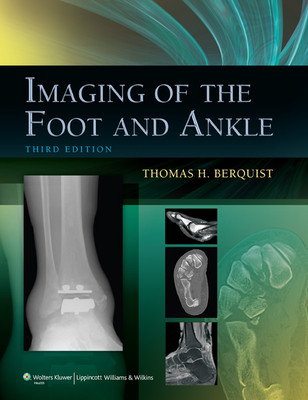 Imaging of the Foot and Ankle - Berquist, Thomas H, MD, Facr