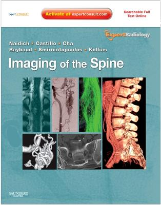 Imaging of the Spine - Naidich, Thomas P, and Castillo, Mauricio, MD, and Cha, Soonmee
