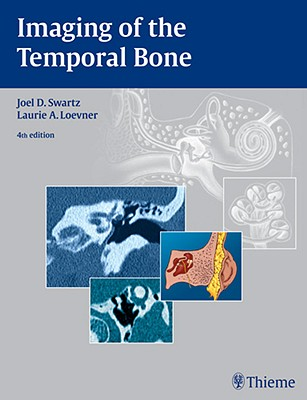 Imaging of the Temporal Bone - Swartz, Joel D (Editor), and Loevner, Laurie A (Editor)