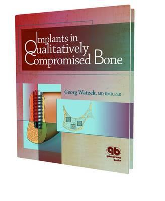 Implants in Qualitatively Compromised Bone - Watzek, George