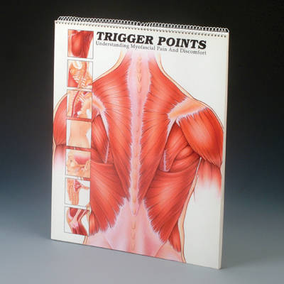 Trigger Points: Understanding Myofascial Pain and Discomfort - Anatomical Chart Company