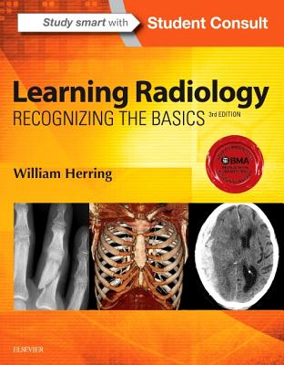 Learning Radiology: Recognizing the Basics - Herring, William, MD, Facr