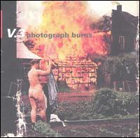 Photograph Burns - V3