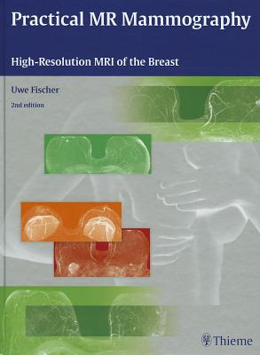 Practical MR Mammography: High-Resolution MRI of the Breast - Fischer, Uwe