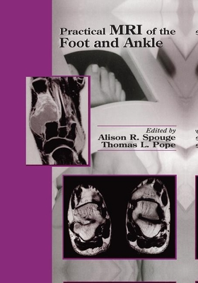 Practical MRI of the Foot and Ankle - Spouge, Alison R. (Editor), and Pope, Thomas L (Editor)