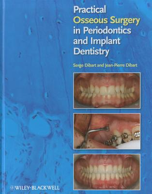 Practical Osseous Surgery in Periodontics and Implant Dentistry - Dibart, Serge, and Dibart, Jean-Pierre