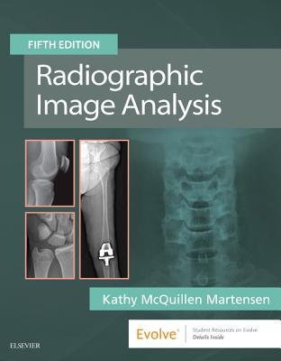 Radiographic Image Analysis - McQuillen Martensen, Kathy