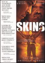 Skins - Chris Eyre