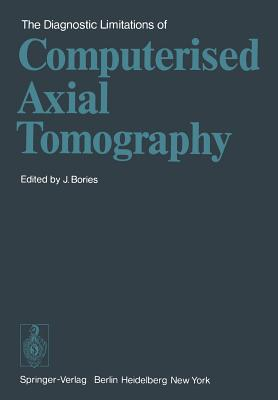 The Diagnostic Limitations of Computerised Axial Tomography - Bories, J (Editor)