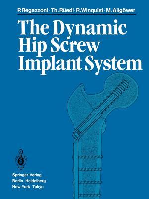 The Dynamic Hip Screw Implant System - Regazzoni, P, and Ruedi, T, and Winquist, R