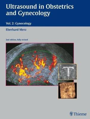 Ultrasound in Obstetrics and Gynecology: Volume 2: Gynecology - Merz, Eberhard