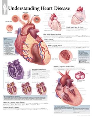 Understanding Heart Disease - Scientific Publishing